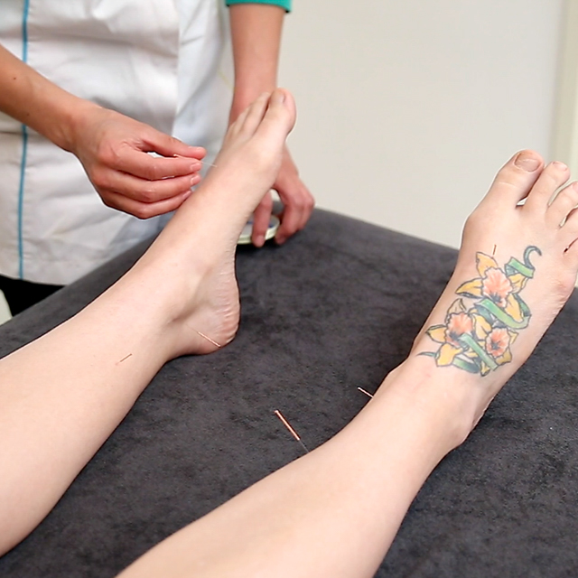 Acupunture in the feet